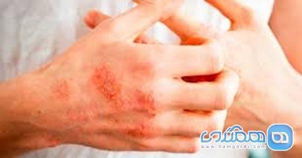 ضدعفونی های الکلی باعث اگزمای پوست می شوند؟